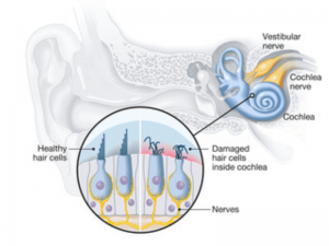 Causes of Tinnitus