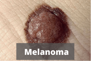 Moles Causes of Melanoma