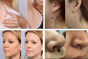 Does Skincell Pro Work