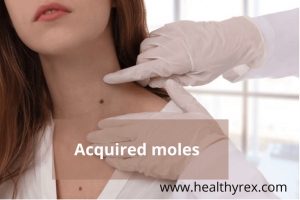 Acquired moles