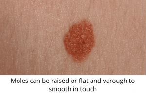 moles can be raised or flat and varough to smooth in touch