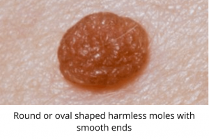 round or oval shaped harmless moles with smooth ends