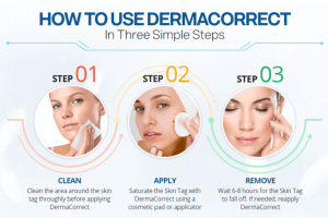 How To Use Derma Correct Skin Tag Remover